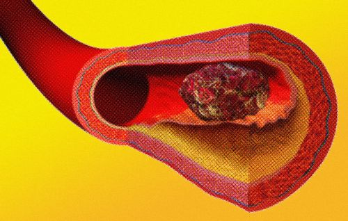 Here's Why Blood Clots Are So Deadly-and How to Know If You Have One