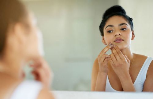 How to Pop a Pimple Safely: 8 Steps for Treating Zits