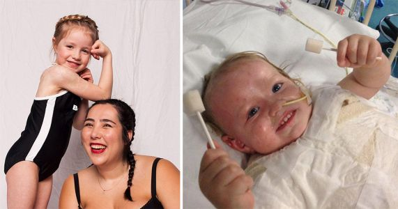 Little girl with burns across a third of her body becomes a swimwear model