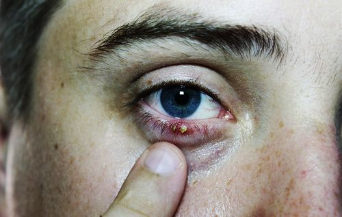 Why You Should Never Pop That Red, Tender Bump Near Your Eye
