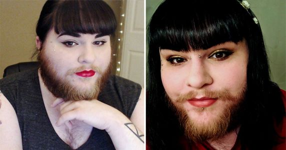 Woman grows a 'hipster beard' after a decade of shaving her face and finally finds love