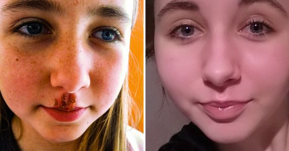Girl with chronic cold sores says a £7.95 liquorice balm is a 'near cure'