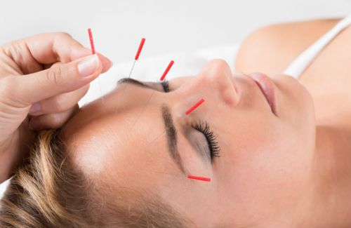 Is Acupuncture the Solution to Your Skin Issues?