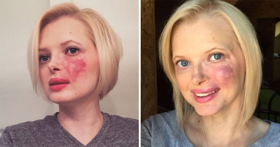 Woman who faced years of bullying finally embraces her giant birthmark