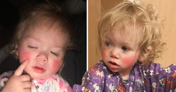 Toddler allergic to water breaks out in blisters every time she cries, sweats, or has a bath