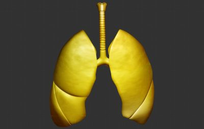 Gold May Be the Answer to Beating Lung Cancer