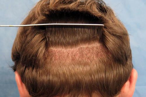 Unshaven Hair Transplant - Facts You Should Consider!