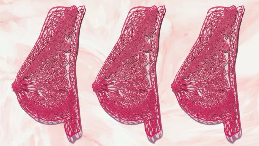 How To Navigate Breast Cancer Screening Guidelines